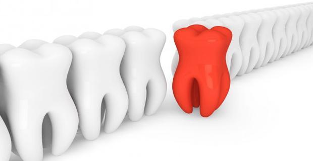 Ciddi hastalıklar diş çürüklerinden besleniyor