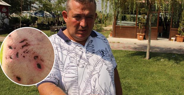 Afyon'da otelde pitbull dehşeti yaşadı